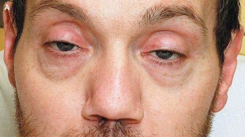 глаза наркомана